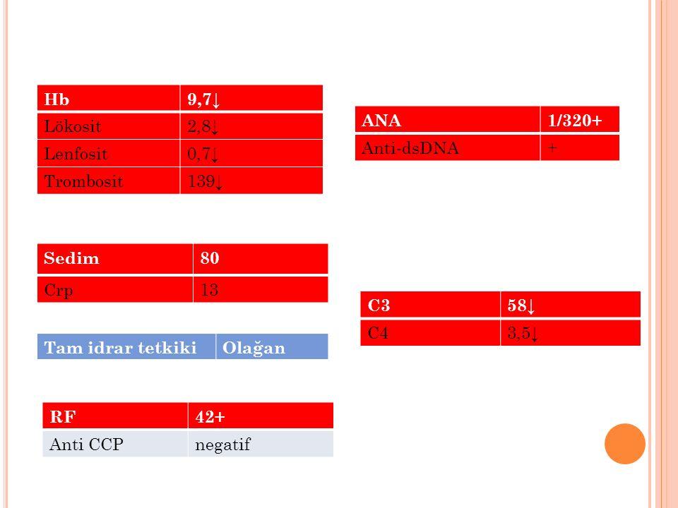 Hb 9,7↓ Lökosit 2,8↓ Lenfosit 0,7↓ Trombosit 139↓ ANA 1/320+