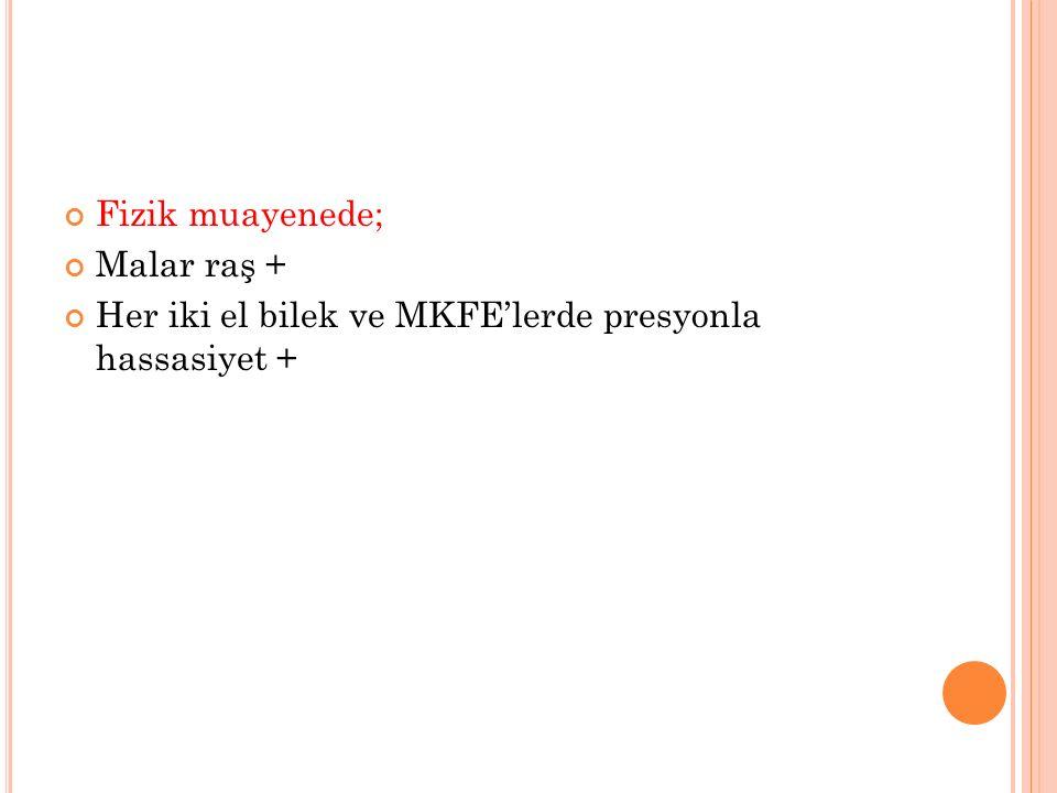 Fizik muayenede; Malar raş + Her iki el bilek ve MKFE'lerde presyonla hassasiyet +