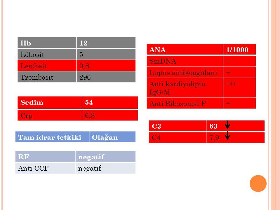 Hb 12. Lökosit. 5. Lenfosit. 0,8. Trombosit. 296. ANA. 1/1000. SmDNA. + Lupus antikoagülanı.
