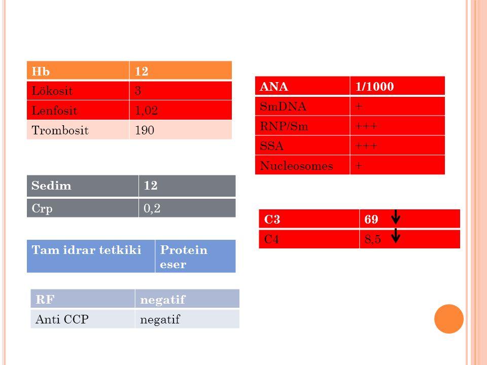 Hb 12. Lökosit. 3. Lenfosit. 1,02. Trombosit. 190. ANA. 1/1000. SmDNA. + RNP/Sm. +++ SSA.