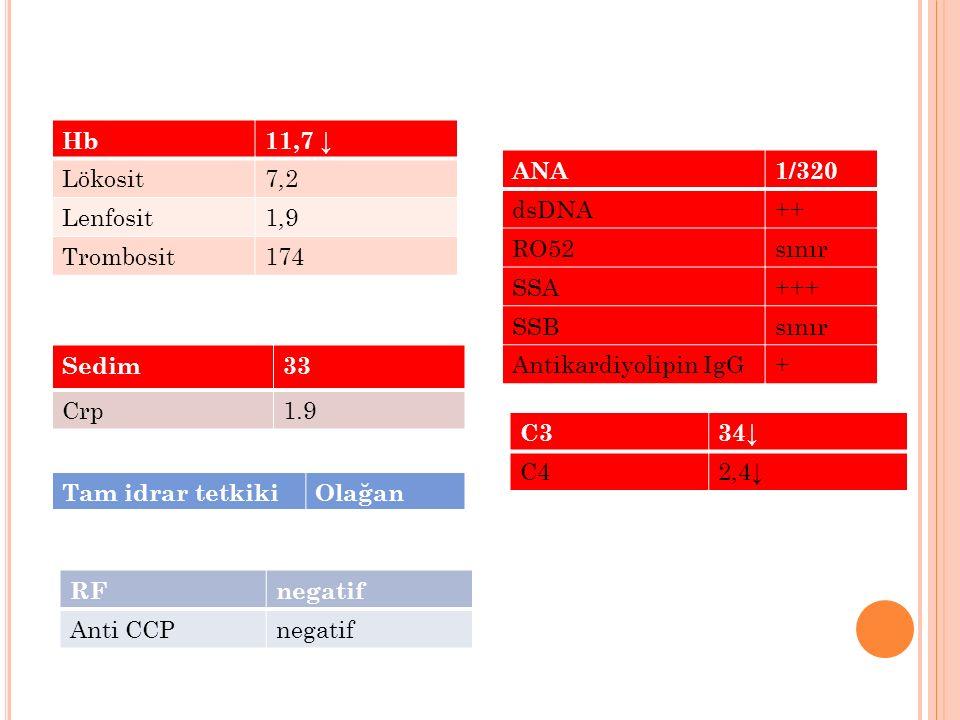 Hb 11,7 ↓ Lökosit. 7,2. Lenfosit. 1,9. Trombosit. 174. ANA. 1/320. dsDNA. ++ RO52. sınır.