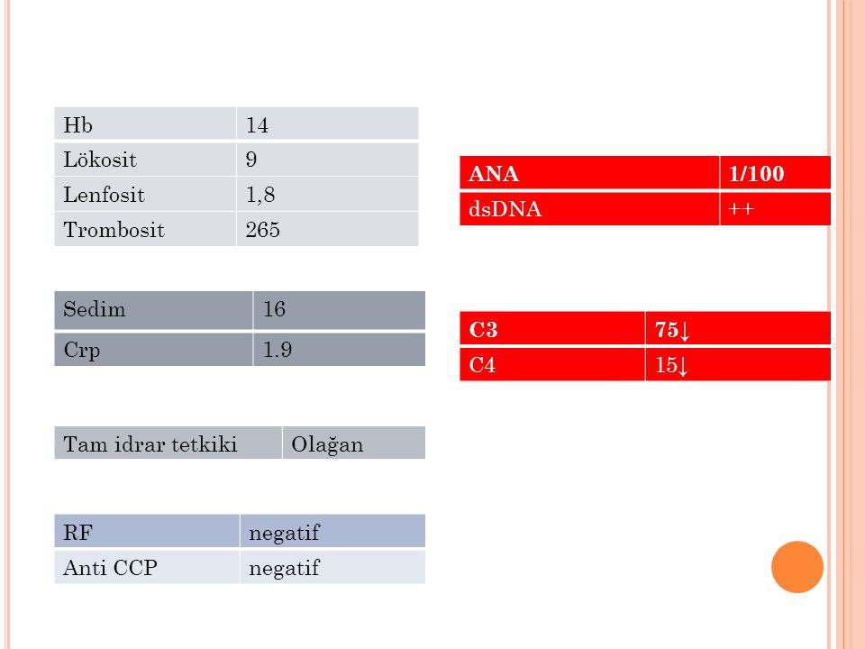 Hb 14. Lökosit. 9. Lenfosit. 1,8. Trombosit. 265. ANA. 1/100. dsDNA. ++ Sedim. 16. Crp.