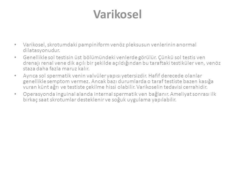Varikosel Varikosel, skrotumdaki pampiniform venöz pleksusun venlerinin anormal dilatasyonudur.
