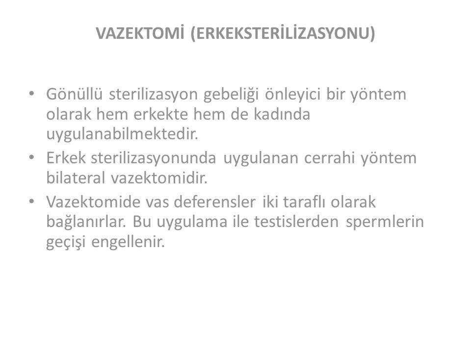 VAZEKTOMİ (ERKEKSTERİLİZASYONU)