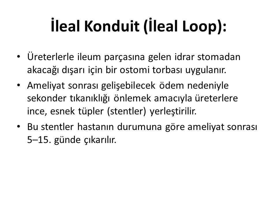İleal Konduit (İleal Loop):