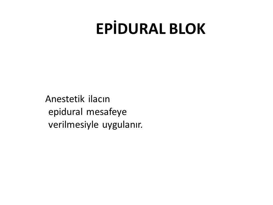 EPİDURAL BLOK Anestetik ilacın epidural mesafeye verilmesiyle uygulanır.