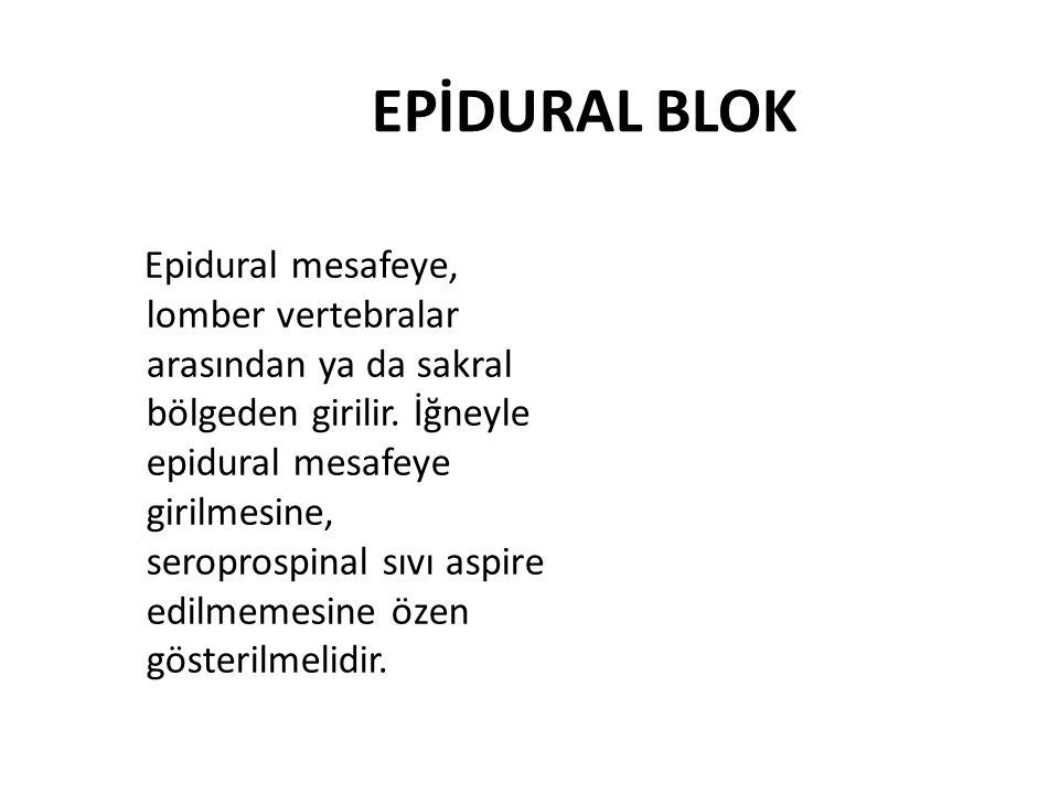 EPİDURAL BLOK