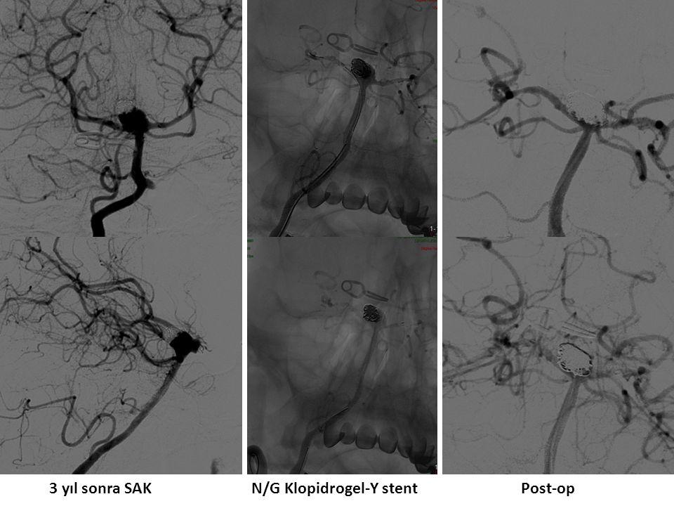 3 yıl sonra SAK N/G Klopidrogel-Y stent Post-op