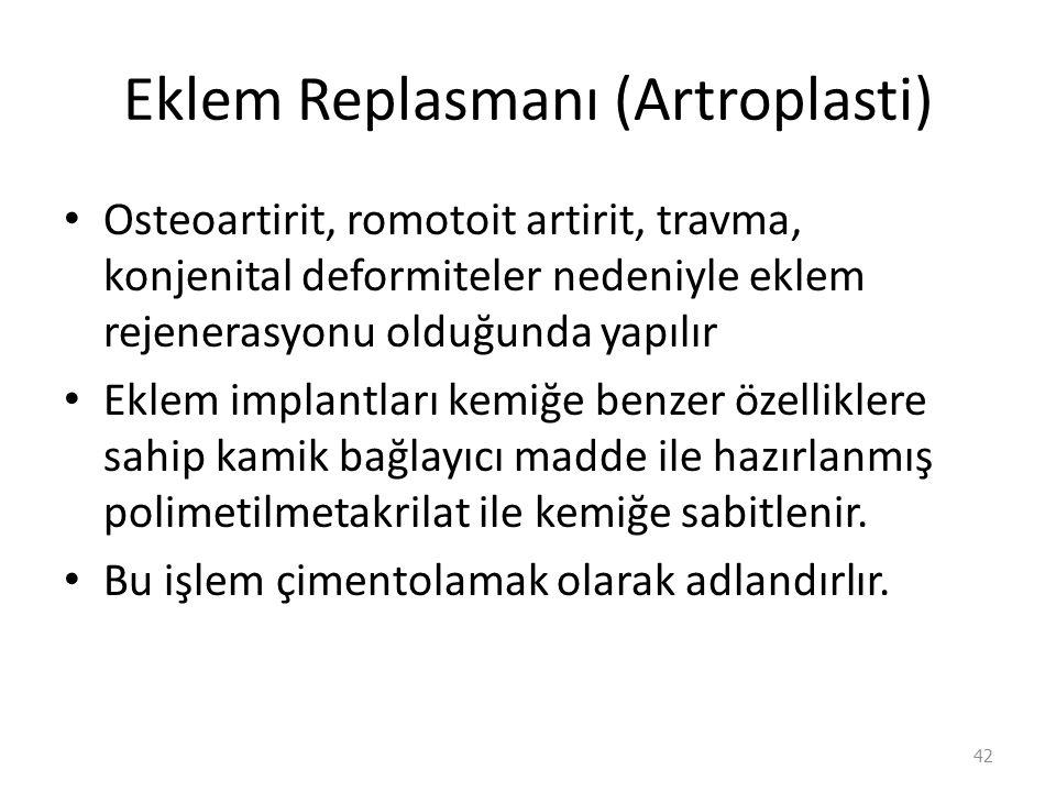 Eklem Replasmanı (Artroplasti)