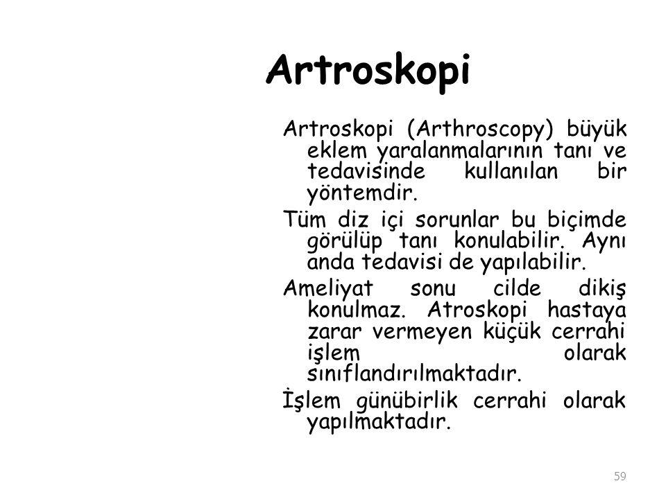 Artroskopi Artroskopi (Arthroscopy) büyük eklem yaralanmalarının tanı ve tedavisinde kullanılan bir yöntemdir.