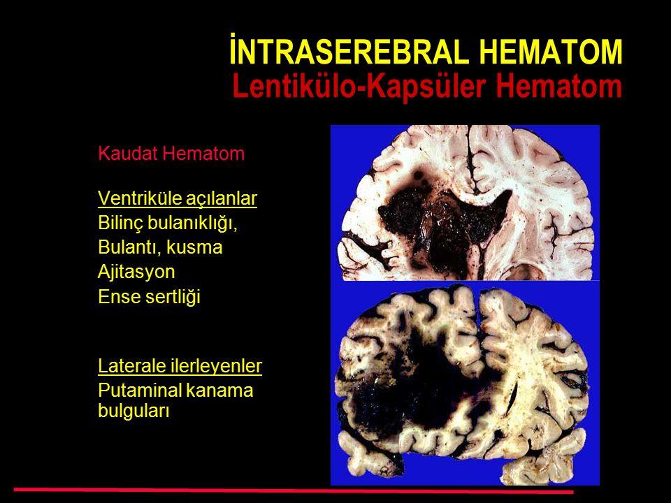 İNTRASEREBRAL HEMATOM Lentikülo-Kapsüler Hematom
