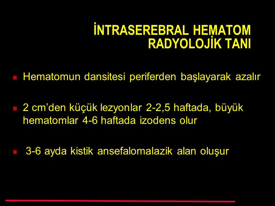 İNTRASEREBRAL HEMATOM RADYOLOJİK TANI