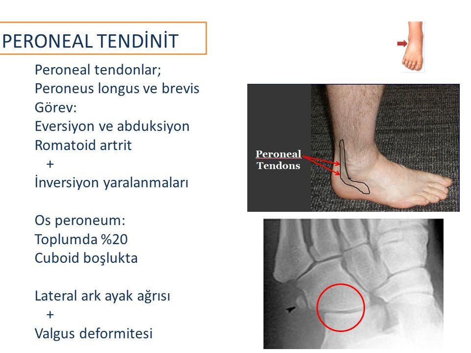 PERONEAL TENDİNİT Peroneal tendonlar; Peroneus longus ve brevis Görev: