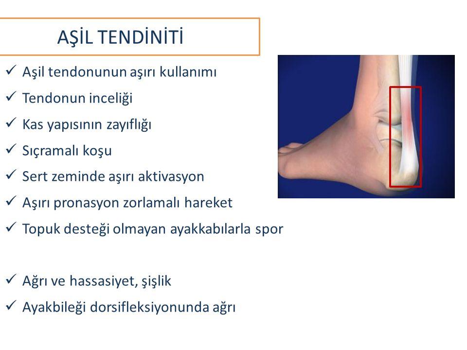AŞİL TENDİNİTİ Aşil tendonunun aşırı kullanımı Tendonun inceliği