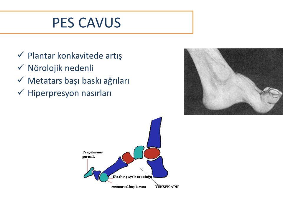 PES CAVUS Plantar konkavitede artış Nörolojik nedenli