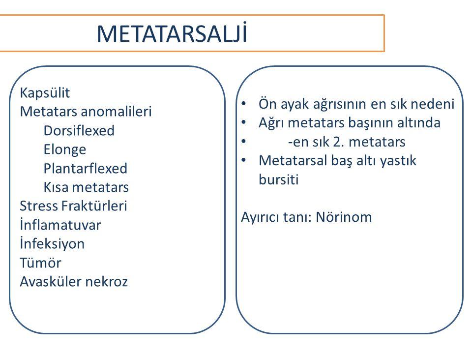 METATARSALJİ Kapsülit Metatars anomalileri