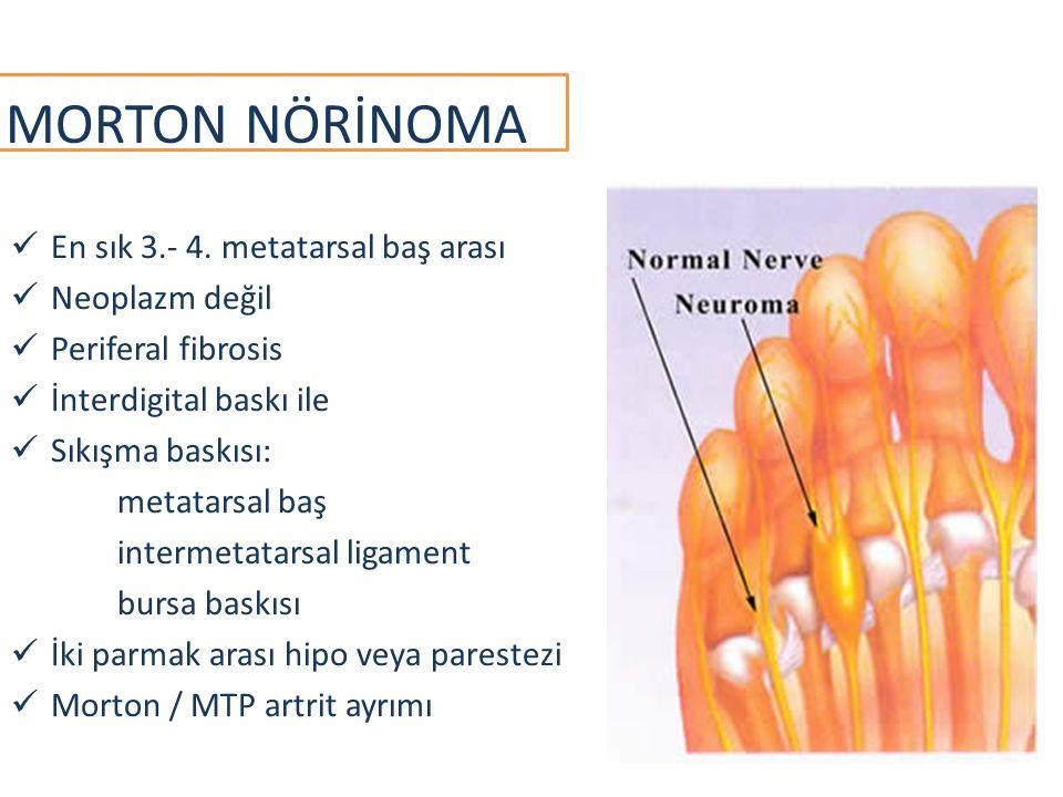 MORTON NÖRİNOMA En sık 3.- 4. metatarsal baş arası Neoplazm değil