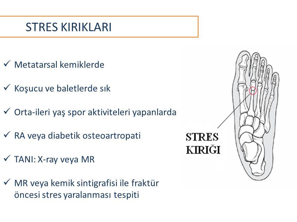 STRES KIRIKLARI Metatarsal kemiklerde Koşucu ve baletlerde sık