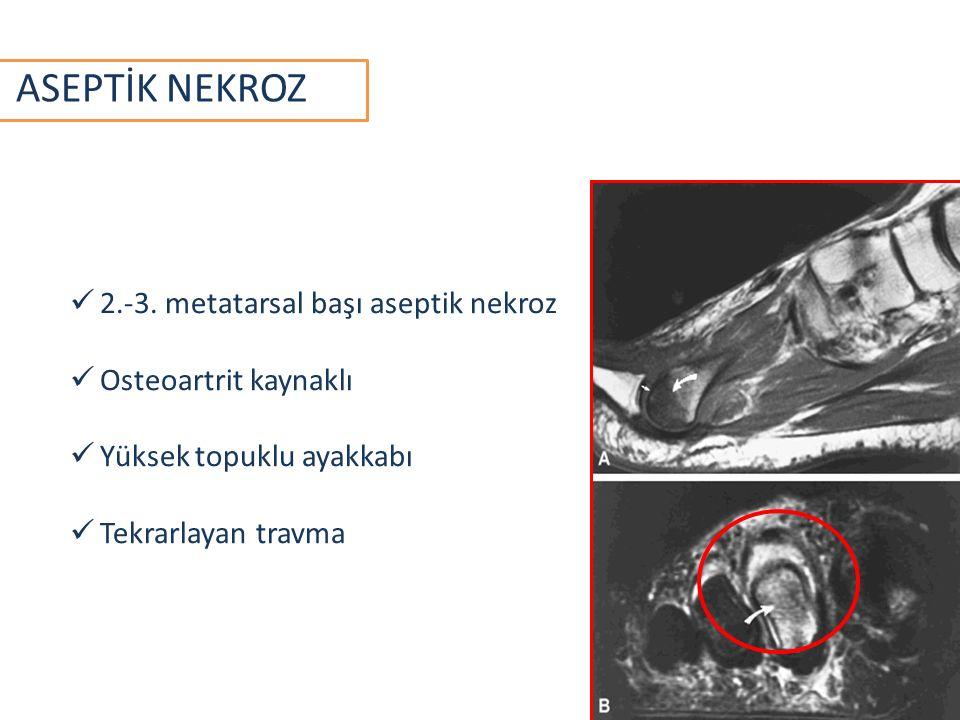 ASEPTİK NEKROZ 2.-3. metatarsal başı aseptik nekroz