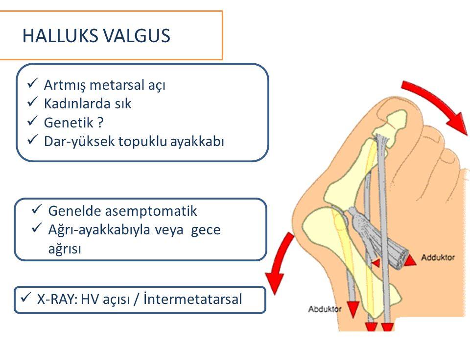 HALLUKS VALGUS Artmış metarsal açı Kadınlarda sık Genetik