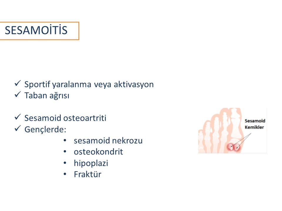 SESAMOİTİS Sportif yaralanma veya aktivasyon Taban ağrısı