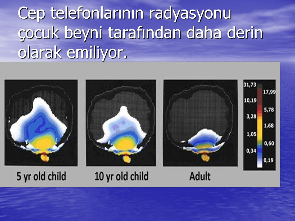 Cep telefonlarının radyasyonu çocuk beyni tarafından daha derin olarak emiliyor.