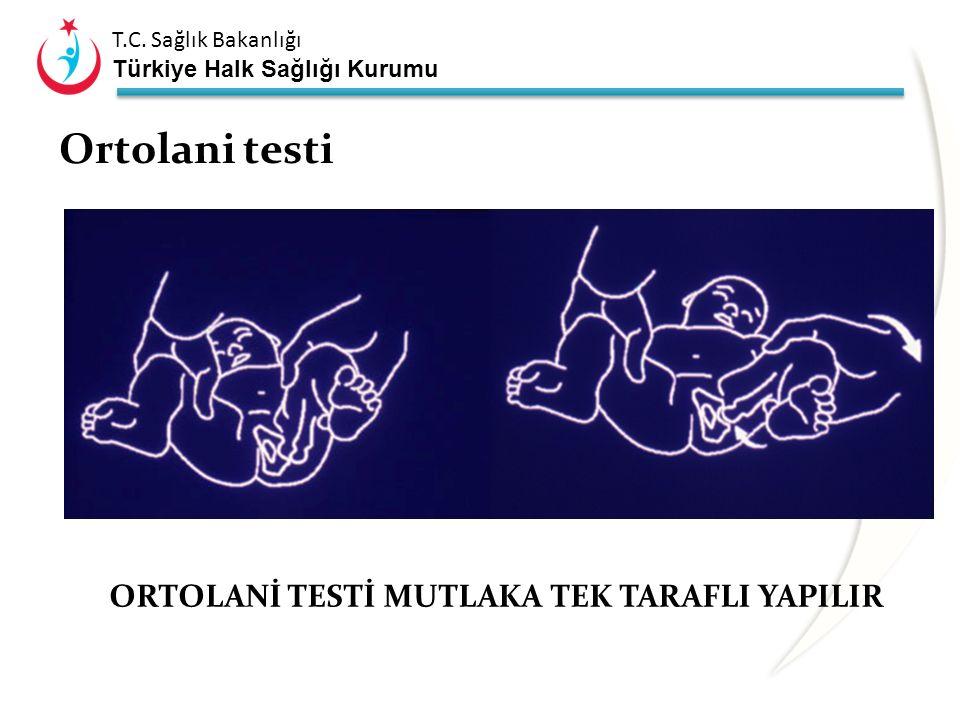 Ortolani testi ORTOLANİ TESTİ MUTLAKA TEK TARAFLI YAPILIR