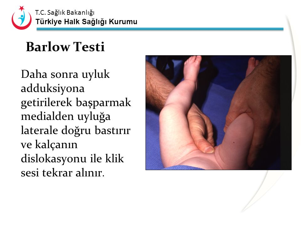 Barlow Testi