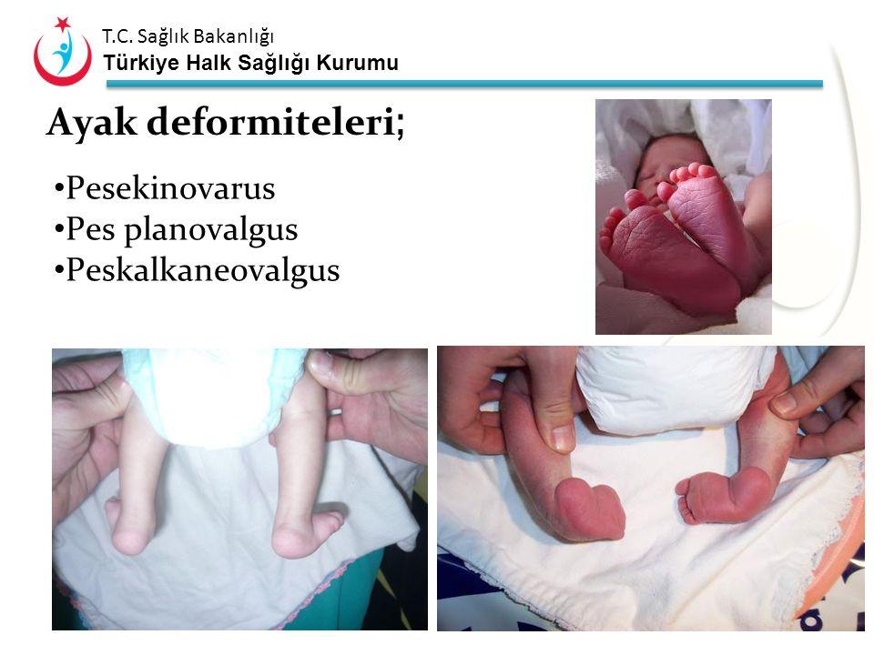 Ayak deformiteleri; Pesekinovarus Pes planovalgus Peskalkaneovalgus