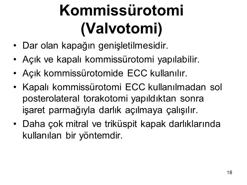 Kommissürotomi (Valvotomi)