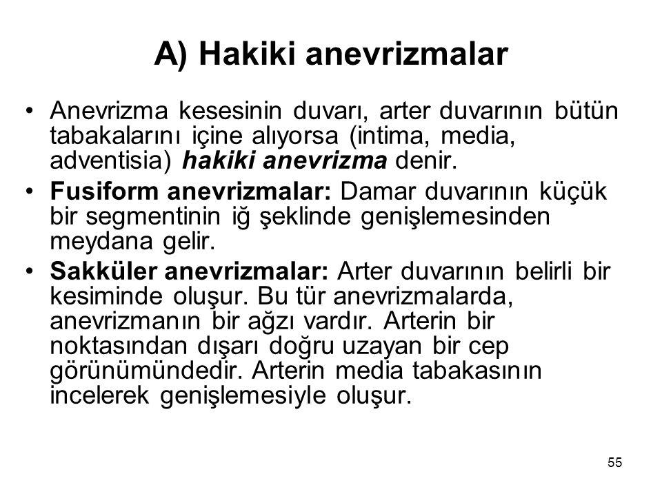 A) Hakiki anevrizmalar