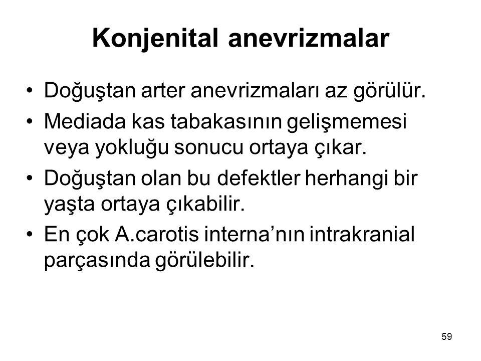 Konjenital anevrizmalar