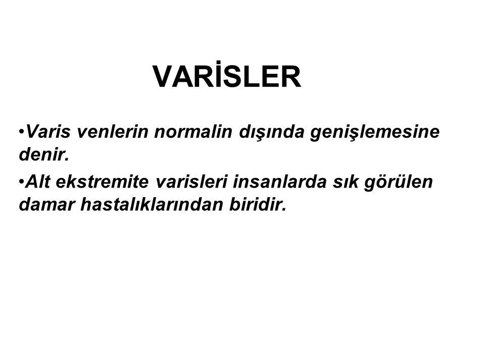 VARİSLER Varis venlerin normalin dışında genişlemesine denir.