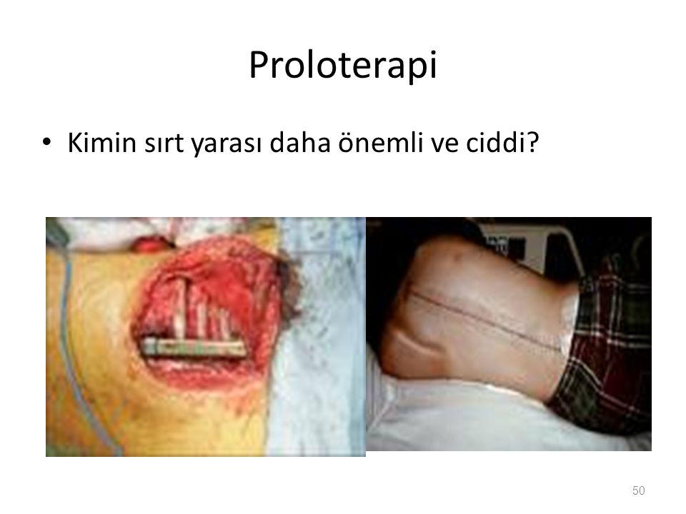 Proloterapi Kimin sırt yarası daha önemli ve ciddi