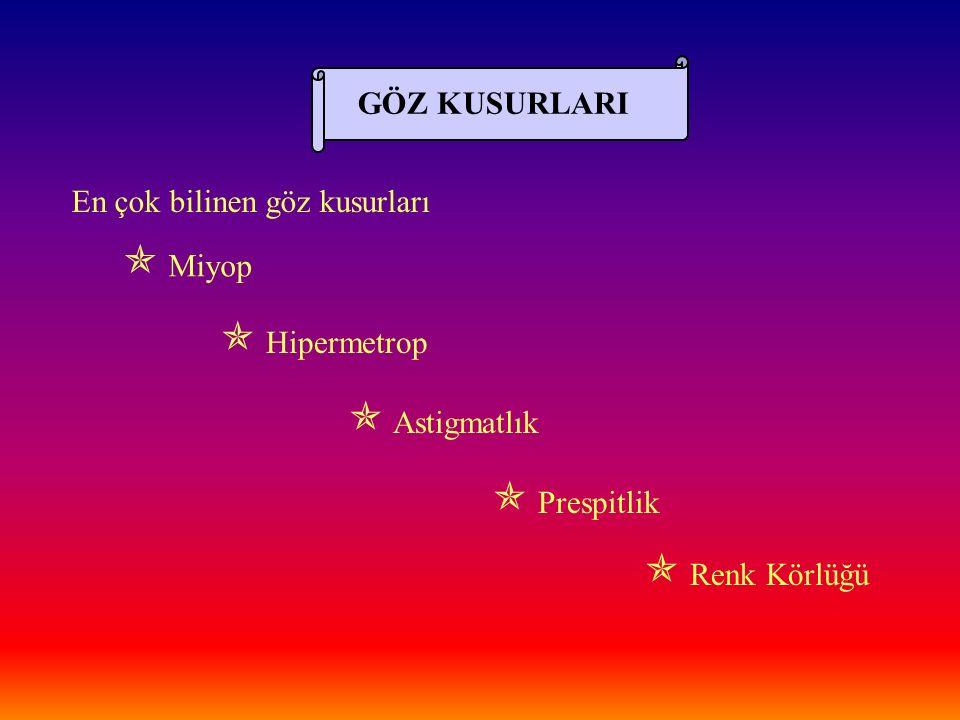  Miyop  Hipermetrop  Astigmatlık  Prespitlik  Renk Körlüğü