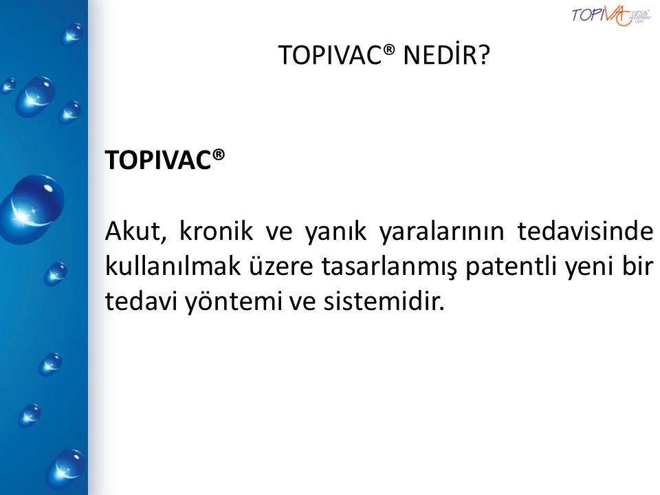 TOPIVAC® NEDİR.