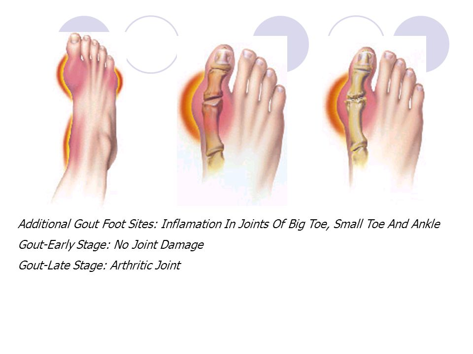 Additional Gout Foot Sites: Inflamation In Joints Of Big Toe, Small Toe And Ankle