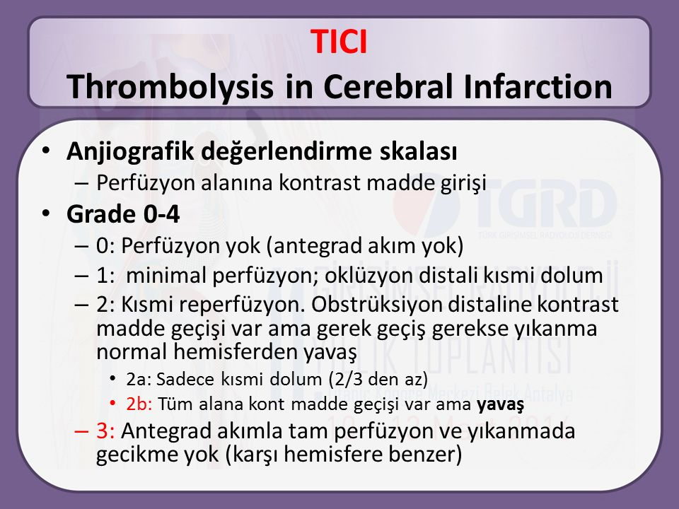 TICI Thrombolysis in Cerebral Infarction
