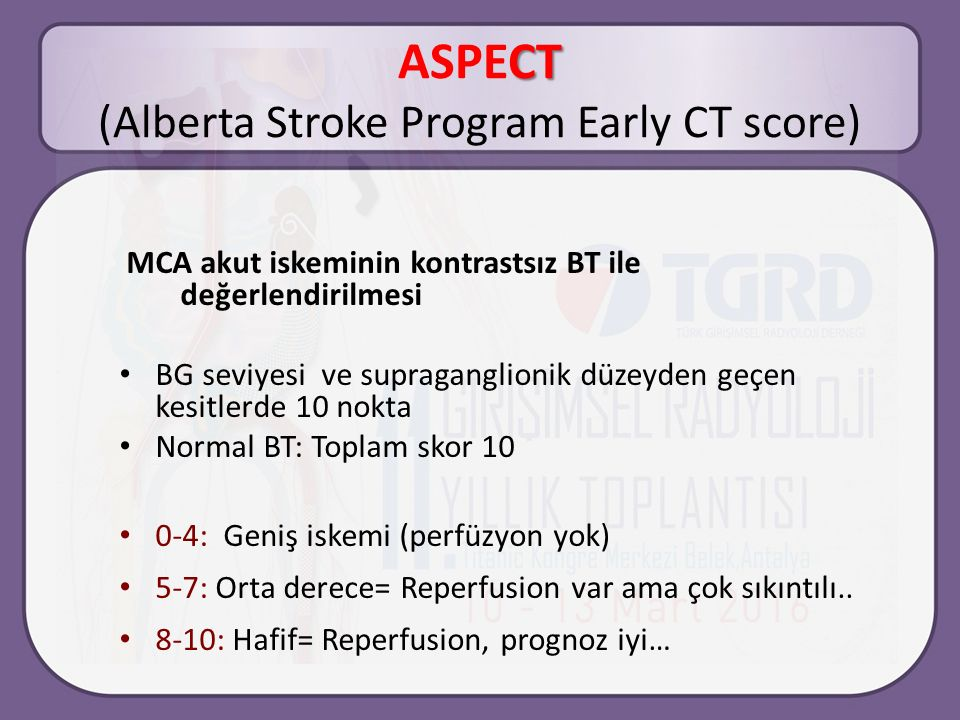 ASPECT (Alberta Stroke Program Early CT score)