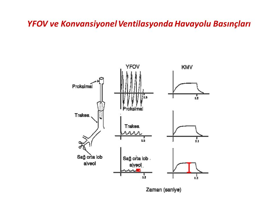 YFOV ve Konvansiyonel Ventilasyonda Havayolu Basınçları