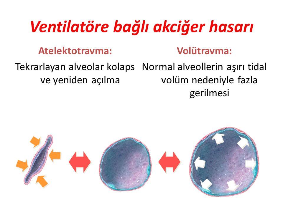 Ventilatöre bağlı akciğer hasarı