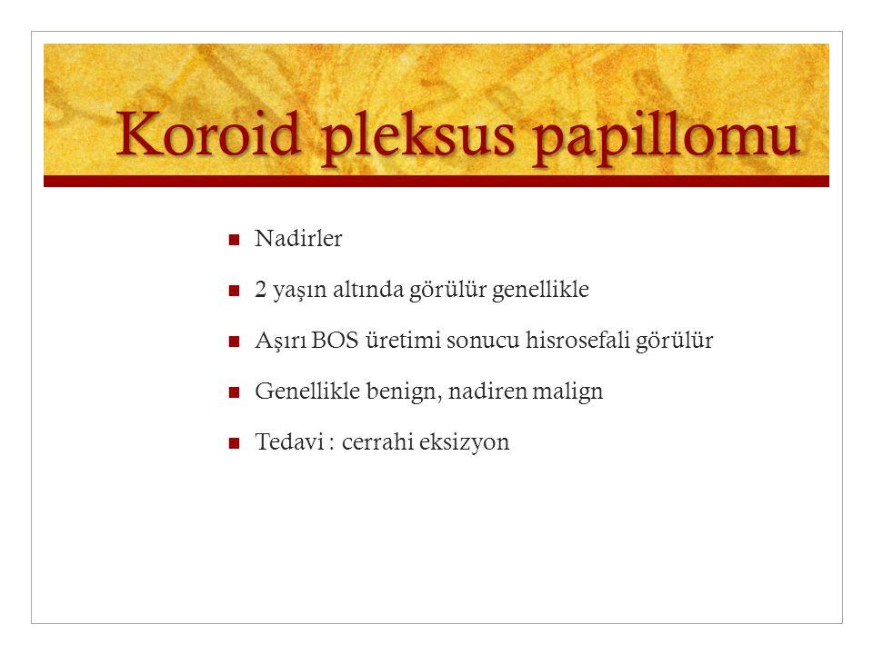 Koroid pleksus papillomu