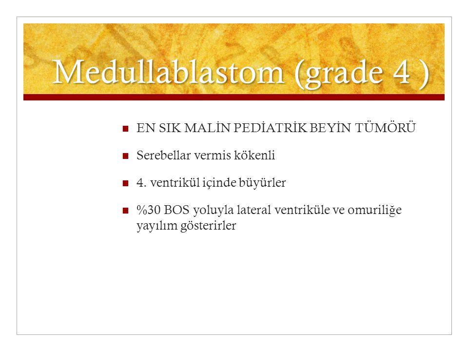 Medullablastom (grade 4 )