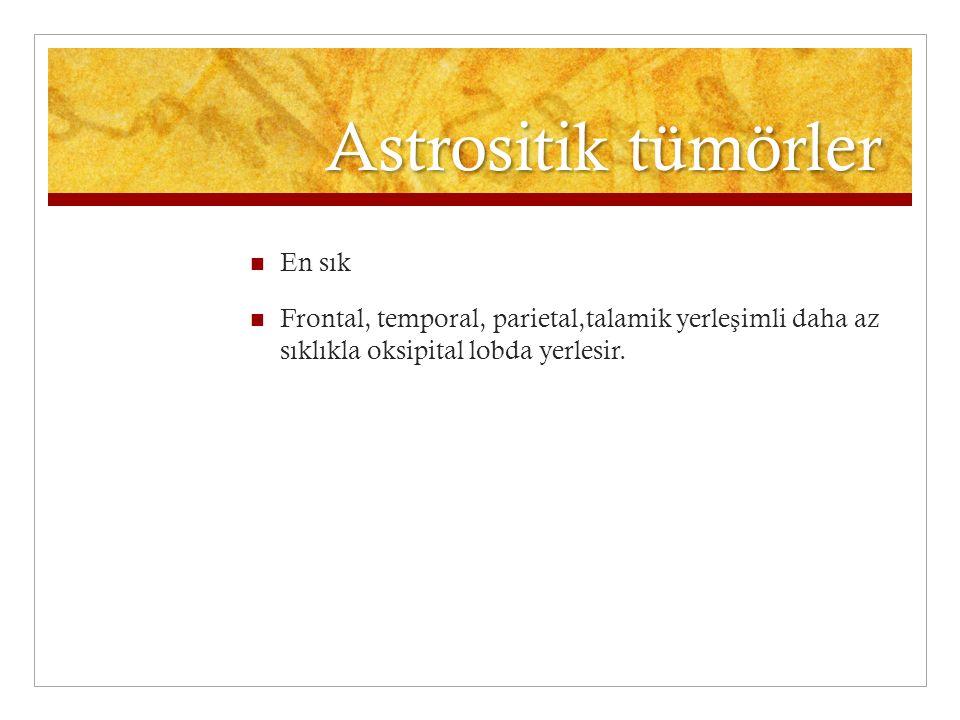 Astrositik tümörler En sık