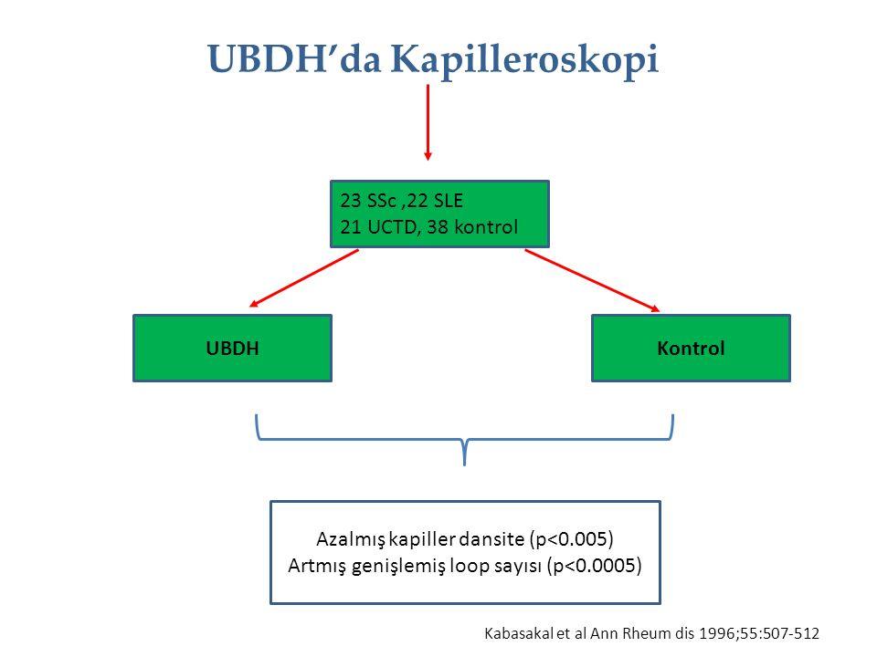 UBDH'da Kapilleroskopi