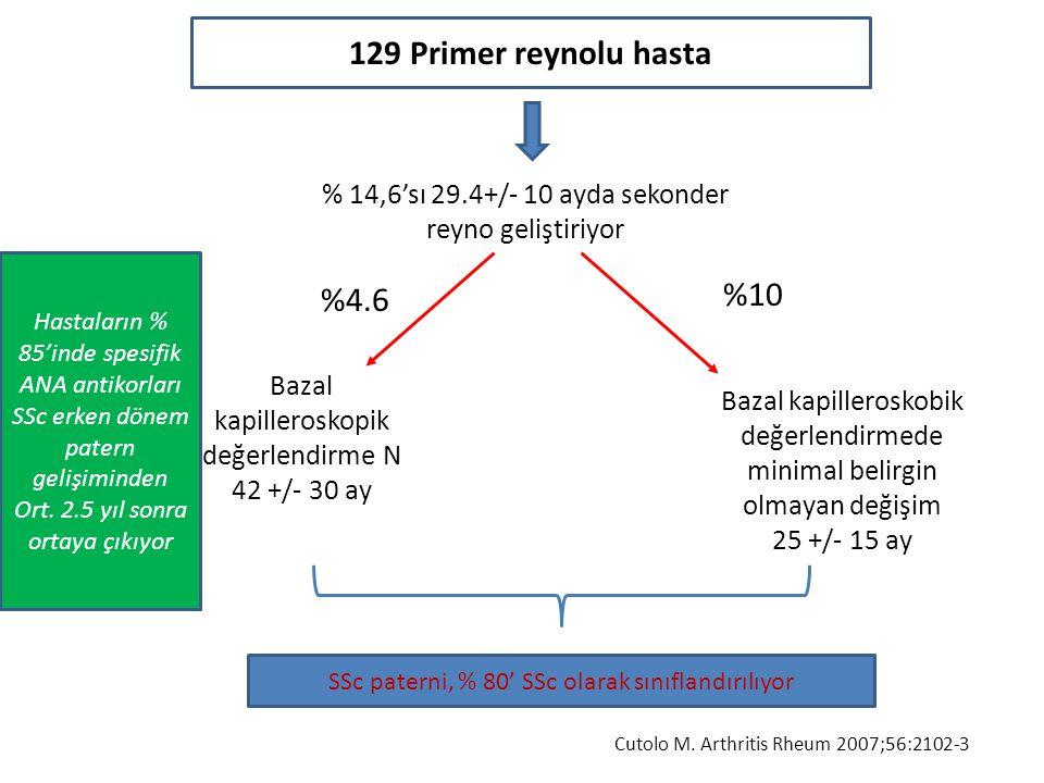 129 Primer reynolu hasta %10 %4.6