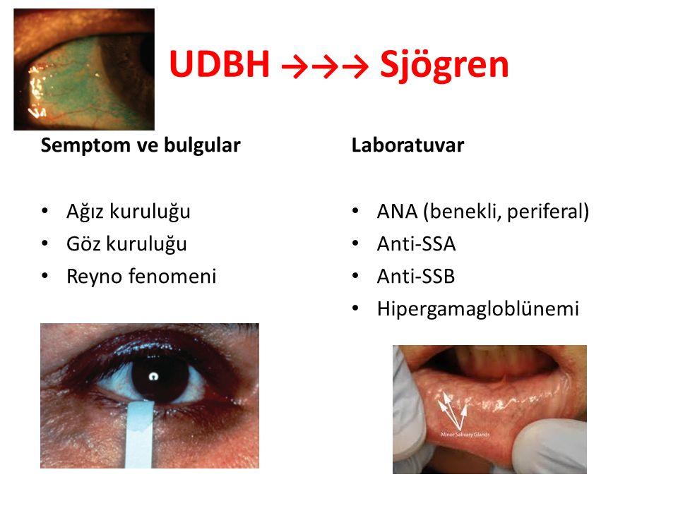 UDBH →→→ Sjögren Semptom ve bulgular Laboratuvar Ağız kuruluğu