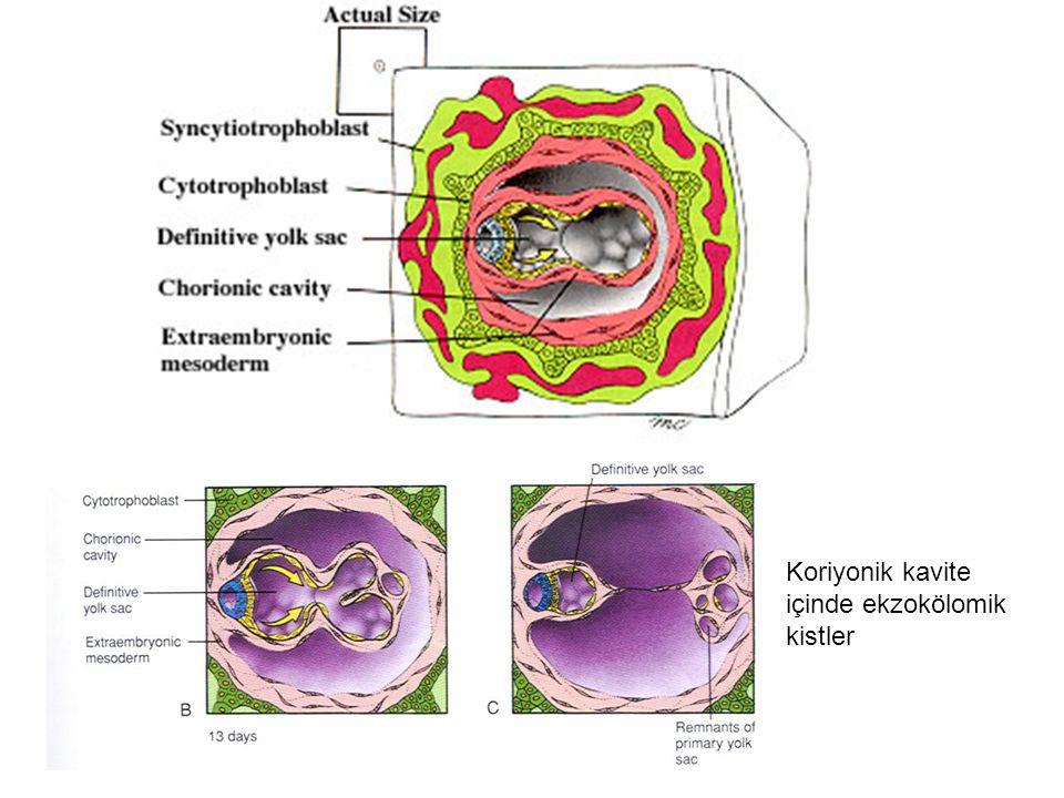 Koriyonik kavite içinde ekzokölomik kistler