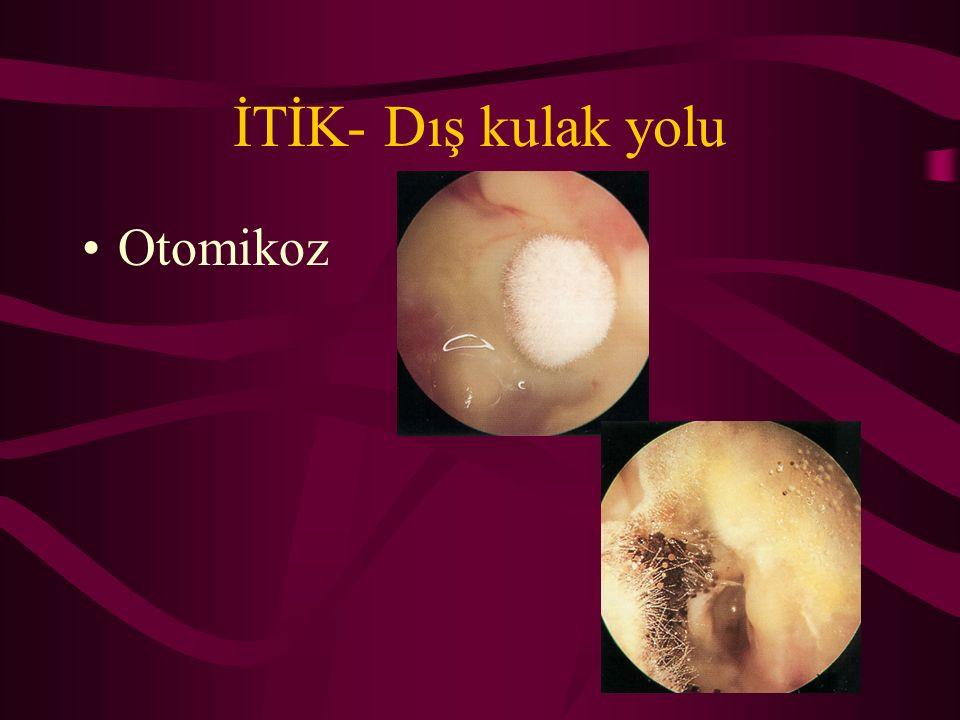 İTİK- Dış kulak yolu Otomikoz