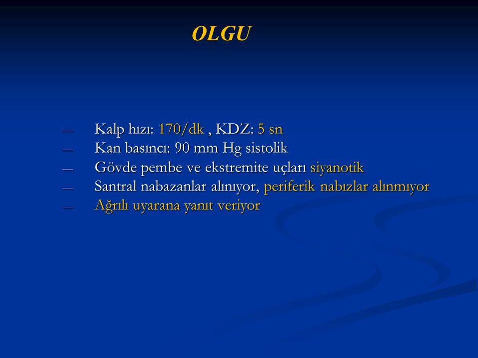 OLGU Kalp hızı: 170/dk , KDZ: 5 sn Kan basıncı: 90 mm Hg sistolik